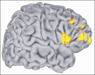Image of the brain with key areas highlighted.