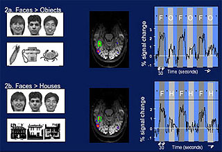 Comparison of sample fMRI scans of the brains of subjects.